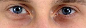 Rote Augenringe